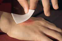 Wound dressings based on Baymedix™ FR are noted for their high mechanical strength, flexibility and biocompatibility.